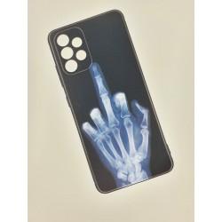 Silikonový obal s potiskem na Samsung Galaxy A52s 5G - Rentgen